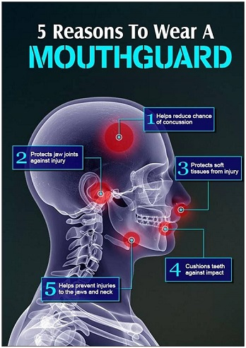 5 reasons to wear a mouthguard - Copy