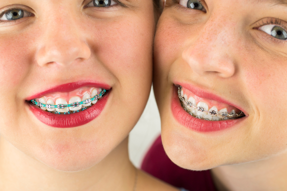 Childrens braces-317