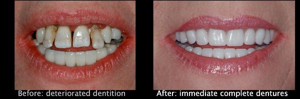 Immediate Dentures | North Shore Dental | Browns Bay ...