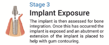 Implant stage 3-266-615-81