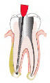 Root Canal File-678