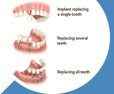 implant teeth-9-583-858