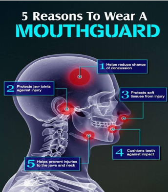 Mouthguard Boil And Bite These Mouthguards Can Be Bought At Many Sports Stores And May Offer A Better Fit Than Stock Mouthguards