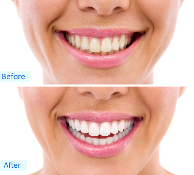 before and after home whitening-731